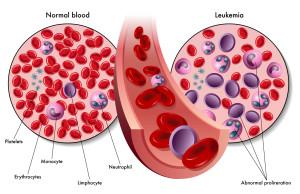 Leucémie et réponse immunitaire